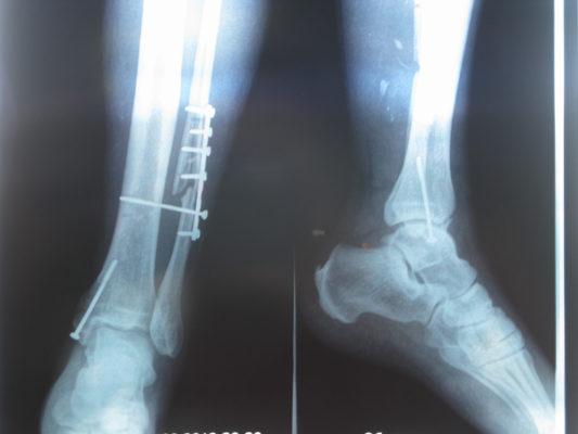 повреждение малой берцовой кости