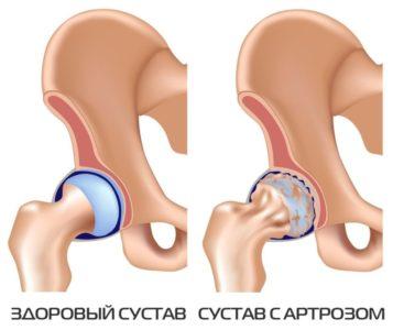 артроз тазобедренного сустава