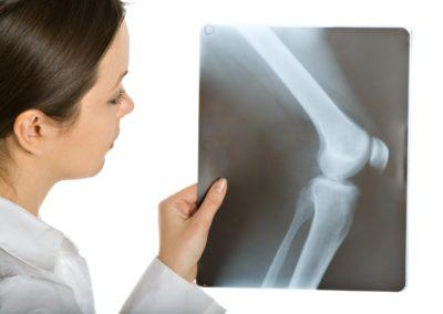 молодой врач с рентгеном коленного сустава