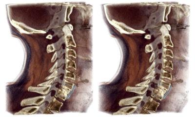 томография шейного отдела
