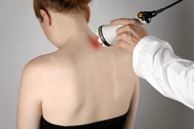 лечение шеи лазером