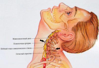 сдавливание артерий