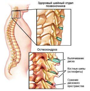 здоровый позвоночник и остеохондроз