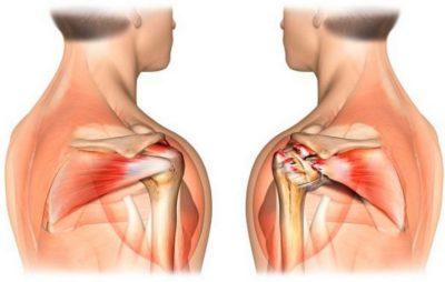 пораженный плечевой сустав