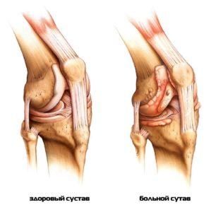 разрушение коленного сустава