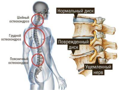 виды остеохондроза позвоночника