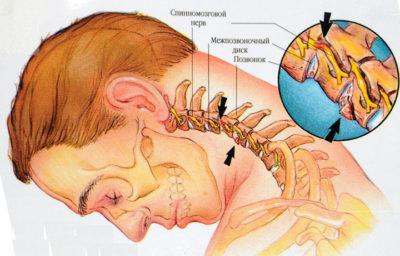 схематический рисунок шейного остеохондроза