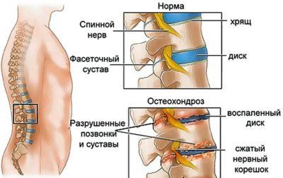Схематический рисунок остеохондроза позвоночника