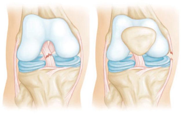 травмы связок и сухожилий