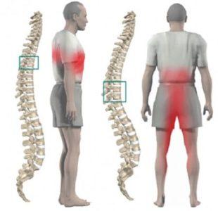Локализация боли при остеохондрозе