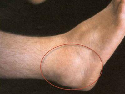 теносиновит голеностопа