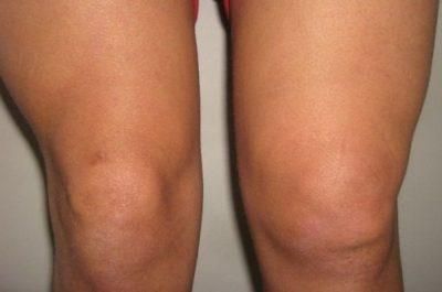 теносиновит коленного сустава