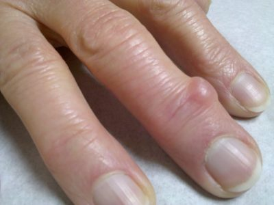 гигрома на пальце