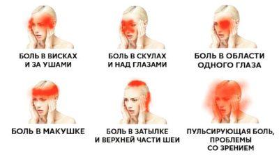Виды болей при остеохондрозе