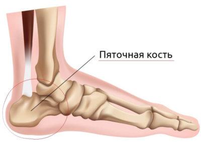 Изображение - Суставы и связки стопы osteohondropatiya-pyatochnoj-kosti-400x283