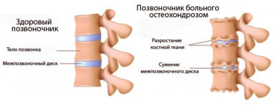 Развитие остеоохондроза