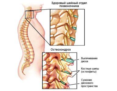 развитие шейного остеохондроза