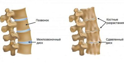 Развитие хондроза позвоночника