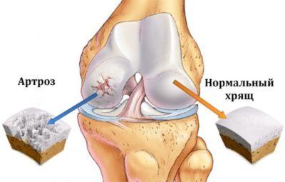 схема артроза колена