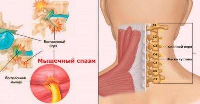 спазмы мышечной ткани