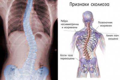 груднопоясничный сколиоз
