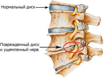 защемление корешков нервов