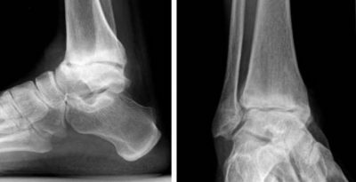 артроз на рентгене