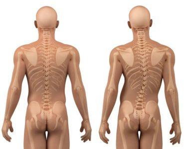перекос тазовых костей
