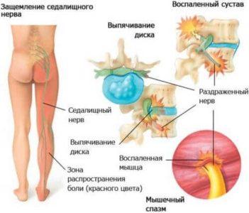 Боль в ноге при грыже позвоночника