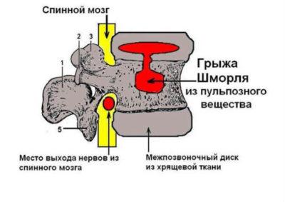 грыжа Шмоля схематически