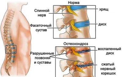 остеохондроз схематически