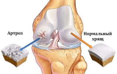 Схематический рисунок поврежденного сустава