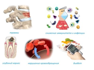 Причины остеомиелита позвоночника