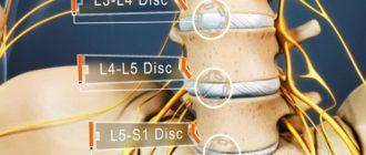 расположение диска