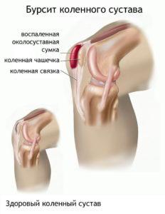 схепа повреждения коленного сустава