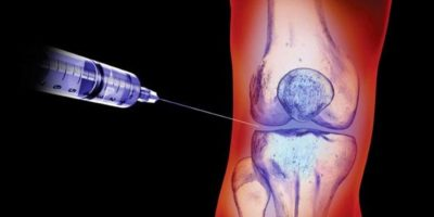 инъекция в сустав колена