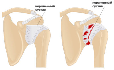 здоровый и больной суставы плеча