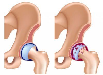 Изображение - Таблетки при артрозе тазобедренного сустава artroz_7-400x292