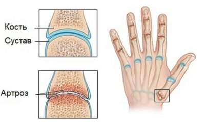 артроз большого пальца