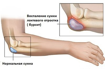 схематический рисунок бурсита локтевого сустава