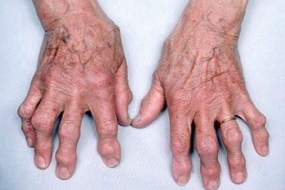 артроз пальцев визуально