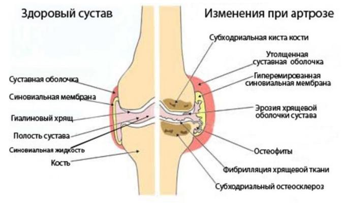 Изображение - Почему щелкают суставы что делать dsfrewagrvsea5463wesath4e5-677x400