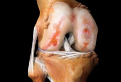 поврежденный коленный сустав