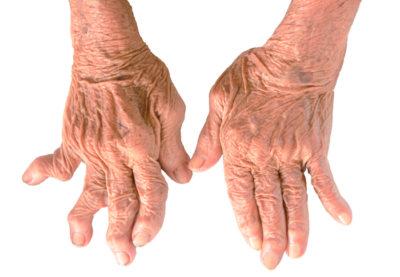 деформация суставов кисти