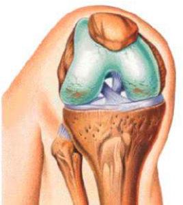 Остеомиелит коленного сустава