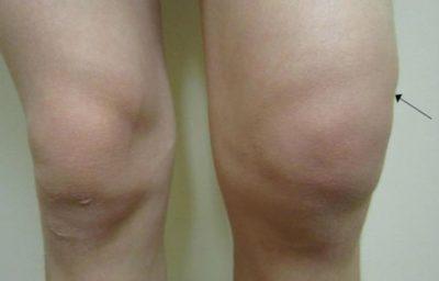 Отек и увеличение коленного сустава