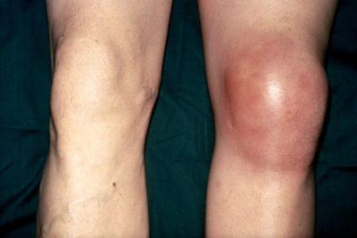 Изображение - Шишка после артроскопии коленного сустава otek-i-krasnota-sustava-400x267