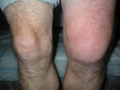 колено видоизменяется