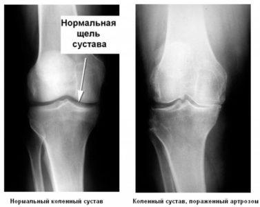 Рентгенологические симптомы артроза