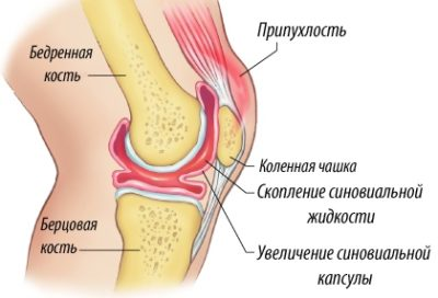 Изображение - Шишка после артроскопии коленного сустава scoplenie-jidkosti-1-400x272